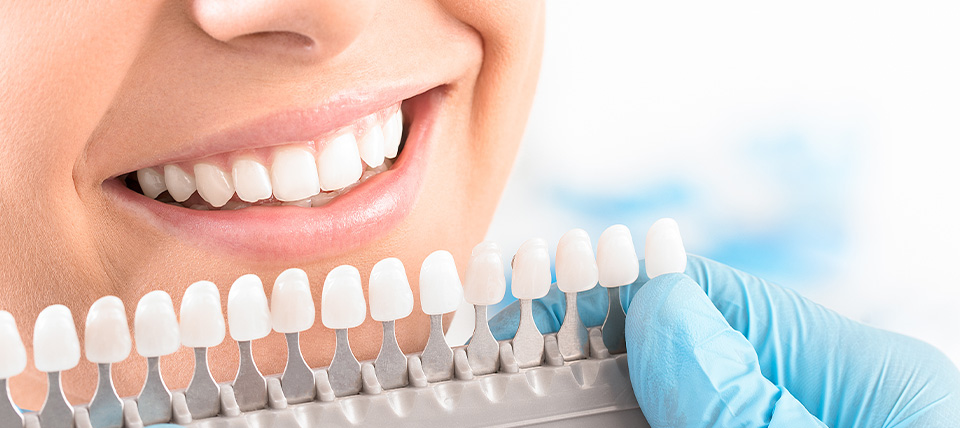 Teeth Whitening Near South Gate