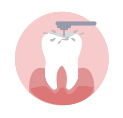 Dental clearing Image