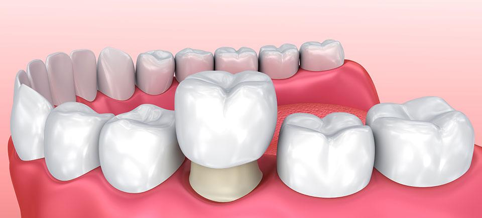 Dental Crown IMage