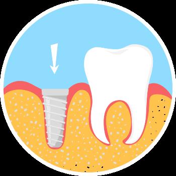 Dental Implant step 1 image
