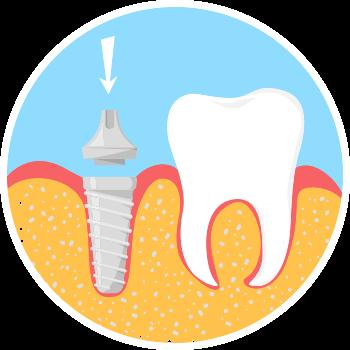 Dental Implant step 2 image