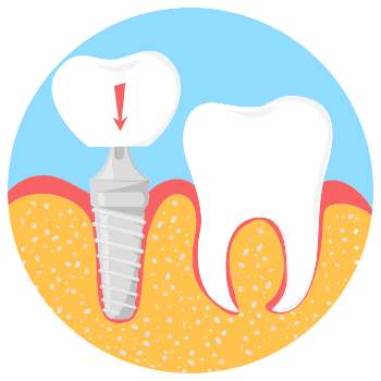 Dental implant step 3 image