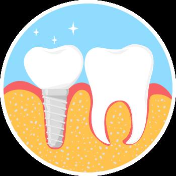 Dental implant step 4 image