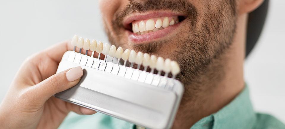 Dental Veneers Image