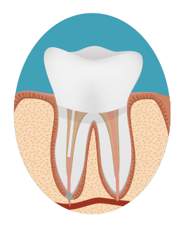 Root Canal Step Four Image