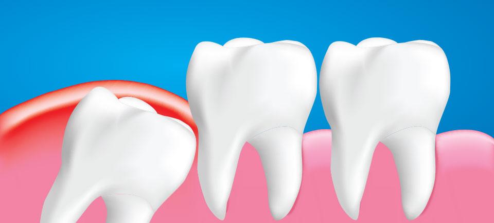 Wisdom Teeth Extraction Image