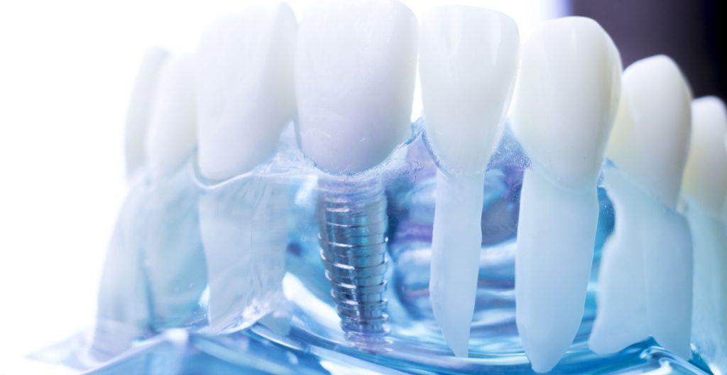 Dental Implant near South Gate, CA